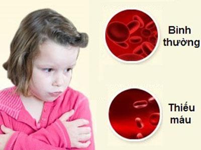 Phòng chống thiếu máu thiếu sắt cho trẻ